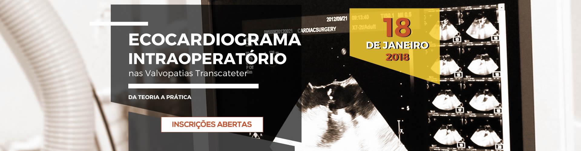 slide-ecocardiograma